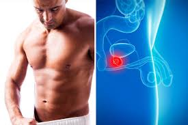 images 3 علائم و علل بیماری پروستات